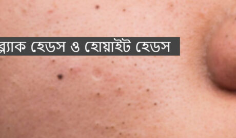 https://tipswali.com/wp-content/uploads/2021/02/blackheads-and-whiteheads-bangla.jpg